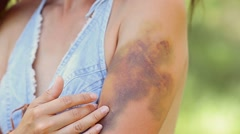 Girl stroke-oars on huge bruise. Stock Footage