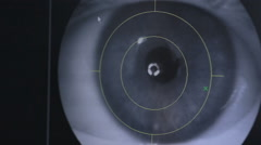 Close up of an eye examination. Doctors screen view. Medical attendance at the Stock Footage