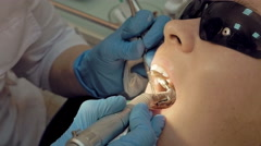 Woman at the dental hygienist medical clinic Stock Footage