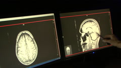 Doctor Analysis radiography in monitors Stock Footage