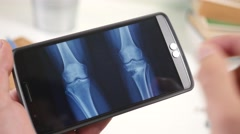 4K Looking At Xray Radiography on Smartphone - Leg Bones Stock Footage