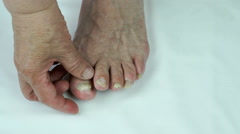 Onychomycosis fungal nail infection Stock Footage