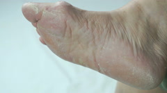 Fungal infections of feet of old woman Stock Footage