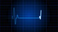 An electrocardiogram heart monitor - EKG 001 HD, 4K Stock Video Arkistovideo