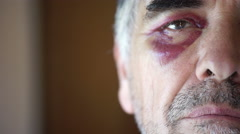 50 year old man wounded in an eye that is about to cry Stock Footage