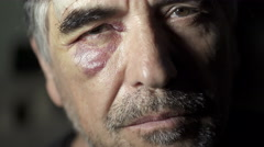 Middle-aged boxer with black eye Stock Footage