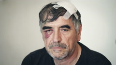 boxer after a boxing match with a swollen face Stock Footage