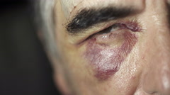 Mature man with a black eye after a fight Stock Footage