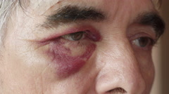 Black eyes of middle age boxer after fight Stock Footage