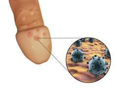 Genital herpes viruses lesions Stock Illustration