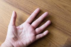 Swollen hand from wasp sting Stock Photos