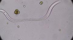 Vinegar Eels (Turbatrix aceti ,Vinegar nematode) Stock Footage