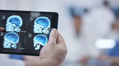 4K Medical team in a meeting. Hands holding tablet in foreground with brain scan Stock Footage