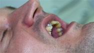 Procedure Of Dental Implant Stock Footage