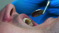 Dentist Checking Patient's Tooth Stock Footage