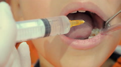 The dentist operates in a child's mouth with syringe and vacuum cleaner Stock Footage