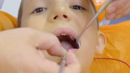 Dentist hands gently removes a baby tooth in a child Stock Footage