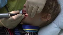 Dentist treats tooth child teeth treatment Stock Footage