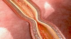 Nitroglycerin relaxing coronary artery Stock Footage