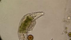 Microscopy - Rotifer Mniobia Magna Stock Footage