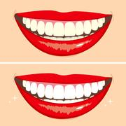 Before and After Smile Stock Illustration