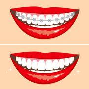 Brakets Smile Stock Illustration