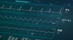 Patient's condition on ICU bedside monitor, stable vital signs, healthcare Stock Footage