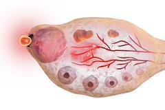 Ovulation in female ovary Stock Illustration
