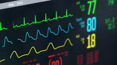 Patient's condition monitored in intensive care unit, screen with vital signs Stock Footage