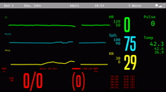 Patient's revival after clinical death, vital signs rising on ICU monitor Stock Footage