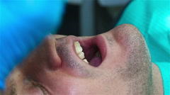 Fixation Of Dental Implant Stock Footage