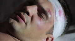 Man with head injuries lying on the bed. bandaged head. bruise on his face. Stock Footage