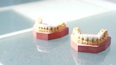 Cosmetic dentistry veneers Stock Footage