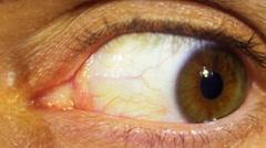 Eye Rotation Of The Eyeball Stock Footage