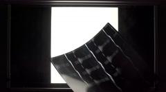 Doctor puts an x-ray on illuminator panel Stock Footage