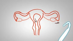 Vagina - Hand drawn - Animation - outline - White Background Stock Footage