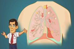 Lungs - Blue Background - professor Stock Footage