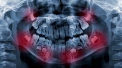 Dental scan x-ray digital footage Stock Footage