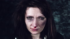 4k Domestic Violence and Abuse, Woman with Bruises Crying and Looking at Camera Stock Footage