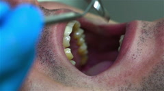 Examination Of Teeth At Dentist Stock Footage