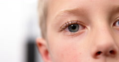 Close-up of young patient eye Stock Footage