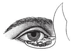 Fig. 177. Blepharoplasty by the method of Blasius, vintage engraving. Stock Illustration