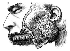Human Parotid Gland and Sternocleidomastoid Muscle, vintage engr Stock Illustration