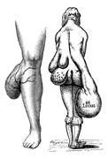 Fig. 767. Lipomas leg, Fig. 768. Multiple lipomas in a woman, vi Stock Illustration
