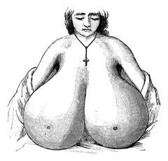 Enlarged breasts, vintage engraving. Stock Illustration