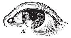 Symblepharon of the lower eyelid, vintage engraving. Stock Illustration