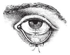 Operation of Symblepharon, vintage engraving. Stock Illustration