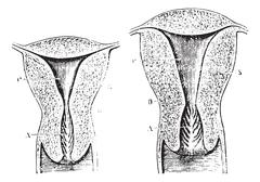 Section of a virgin womb Cup, vintage engraving. Stock Illustration