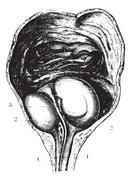 Enlarged prostate or Benign prostatic hyperplasia (BPH), determi Stock Illustration