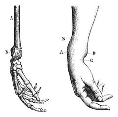 Fracture of the lower extremity of the radius, vintage engraving Stock Illustration
